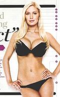 Heidi-montag-surgery-after